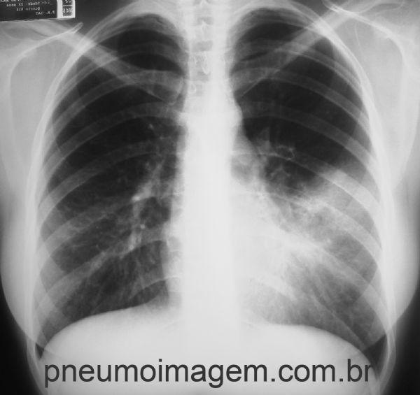 durere lângă cot inflamația articulației sterno-costale